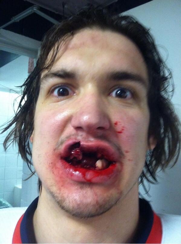 Un joueur de hockey sur glace reçoit un palet en pleine bouche