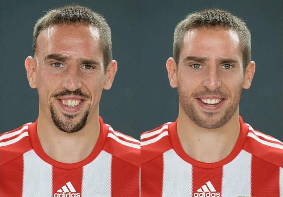 Franck Ribéry sans cicatrice