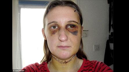 Torturée par son ex, le juge la menace de l'emprisonner si elle ne garde pas contact avec lui