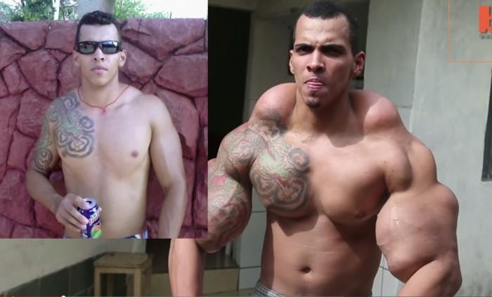 Il voulait ressembler à Hulk, les médecins envisagent de lui amputer les deux bras