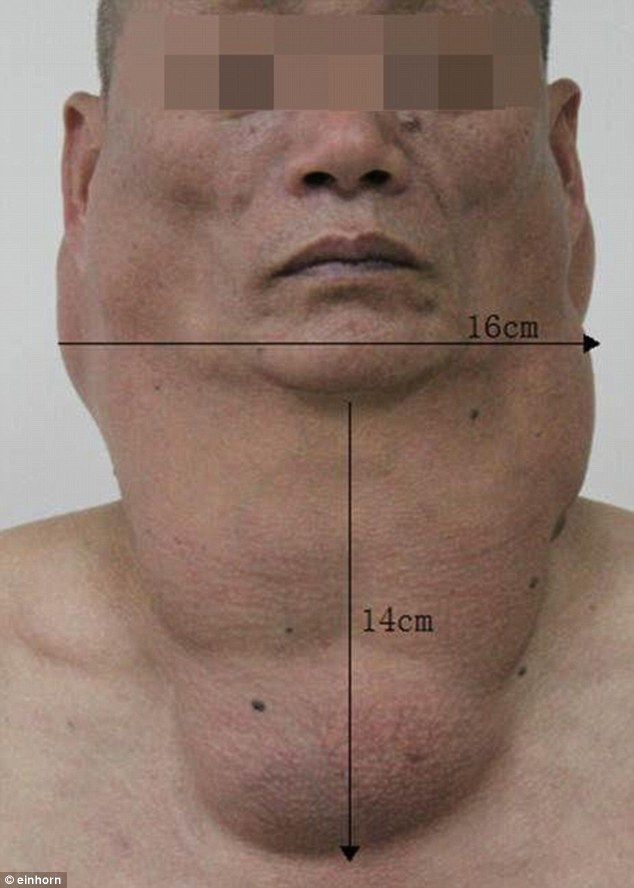Cet homme a bu 1 litre d'alcool fort tous les jours pendant 30 ans, voilà le résultat